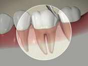 Preventative: Regular Dental Visits