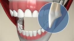 Veneer (Cracked Tooth)