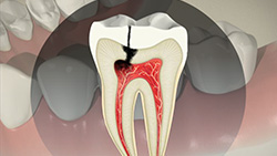 Root Canal (Direct Post and Core)