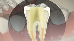 Root Canal (Indirect Post and Core)