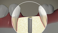 Implant (Cemented Crown)