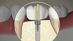 Implant (Screw-Fixed Crown)