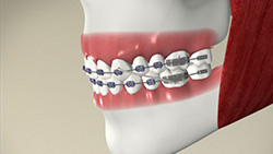 Getting to Know Your Braces