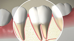 How Teeth Move with Braces