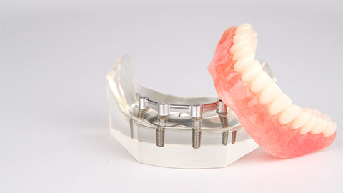 supported dental implant